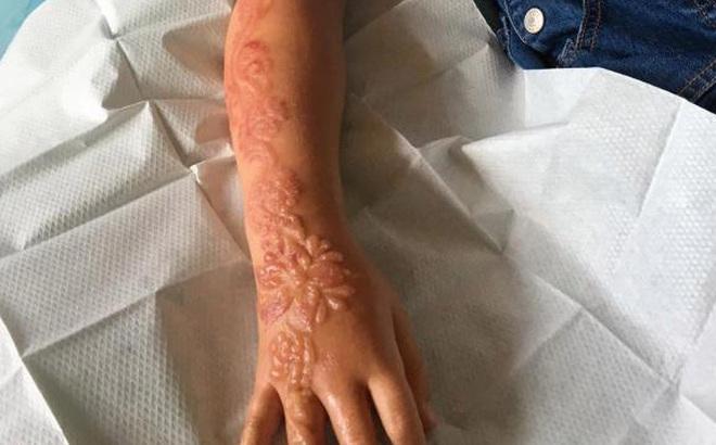 """Bé gái bị bỏng và sẹo ở cánh tay suốt đời: Lời cảnh báo cho các bậc cha mẹ """"chiều con"""""""