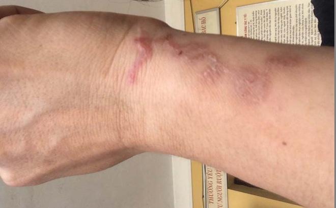 Hà Nội: Người phụ nữ thất thần khi phát hiện ấu trùng bò lổm ngổm dưới da