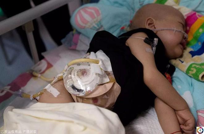 Mẹ nhẫn tâm bỏ con 2 tuổi ung thư, trộm luôn gần 1 tỉ tiền vay cho con chữa bệnh - Ảnh 3.