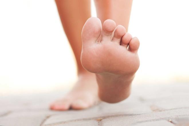 Khi có 4 dấu hiệu này ở bàn chân, có thể bạn đã rơi vào bẫy bệnh tiểu đường - Ảnh 4.