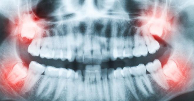 Nỗi niềm mọc răng khôn: Chỉ những người trong cuộc mới hiểu được cảm giác phát điên - Ảnh 1.