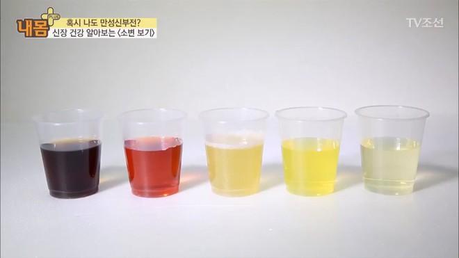 Bác sĩ Hàn Quốc hướng dẫn cách nhìn tình trạng nước tiểu xác định xem cơ thể đang mắc bệnh gì - Ảnh 1.