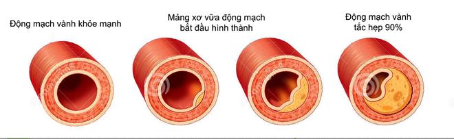 Mạch máu bị tắc có thể gây nguy hiểm tính mạng, dấu hiệu nào giúp bạn nhận biết sớm? - Ảnh 2.
