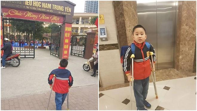 Vụ tai nạn Nam Trung Yên: Học sinh bị thương tật 32% - Ảnh 2.
