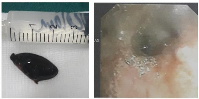 Ho suốt 3 năm mới phát hiện mắc hạt hồng xiêm trong phế quản - Ảnh 2.