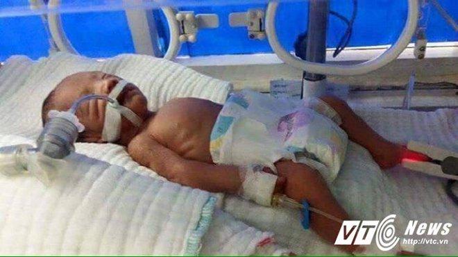 Thai phụ chết thảm sau tai nạn, để lại chồng tật nguyền chật vật nuôi 2 con thơ - Ảnh 2.