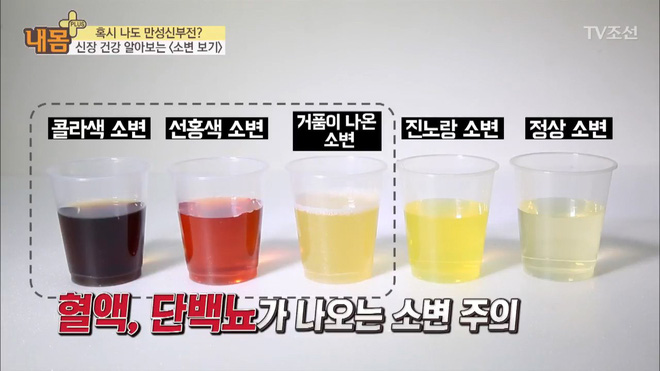 Bác sĩ Hàn Quốc hướng dẫn cách nhìn tình trạng nước tiểu xác định xem cơ thể đang mắc bệnh gì - Ảnh 8.
