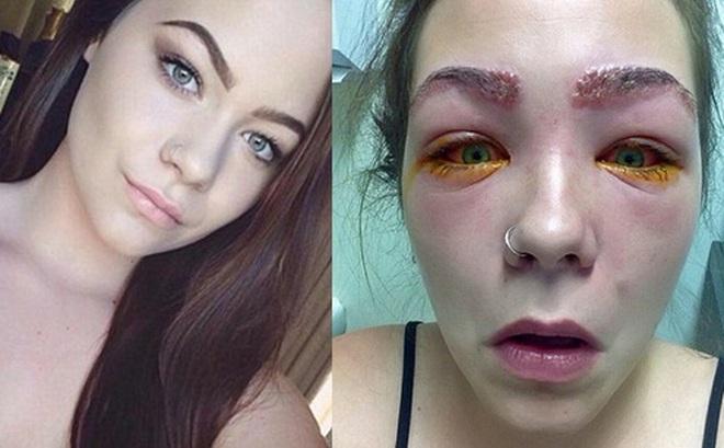 Cảnh báo: Làm đẹp lông mày và lông mi với thuốc nhuộm, cô gái trẻ suýt mù cả hai mắt