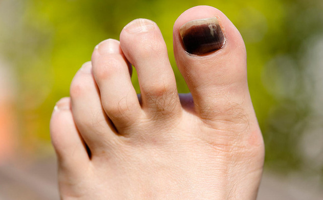 Kết quả hình ảnh cho móng chân tụ máu khi chạy