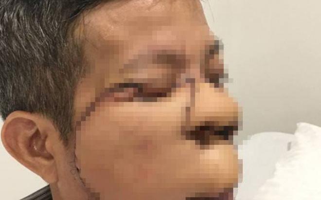 Tái tạo khuôn mặt cho người đàn ông ung thư da 10 năm không dám ăn cơm cùng con, cháu