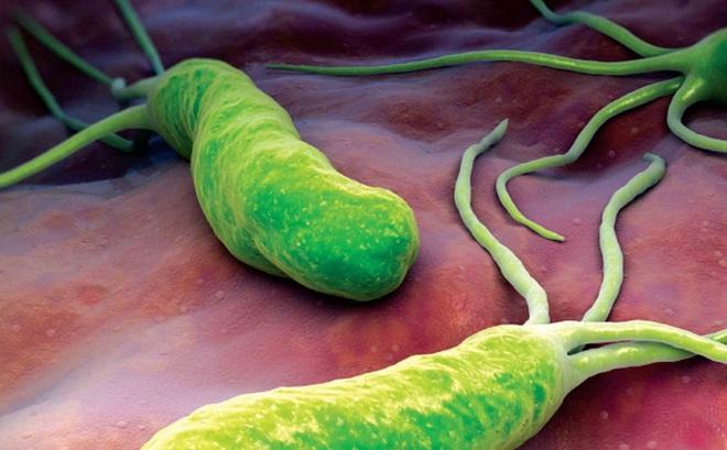 Viêm dạ dày trẻ em và nỗi ám ảnh của vi khuẩn HP