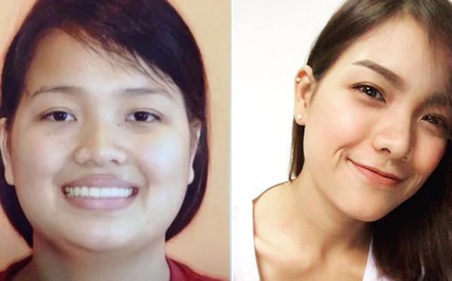 Năm lần bảy lượt bị từ chối vì quá béo, cô gái Thái quyết tâm giảm hơn 60kg thành hot girl