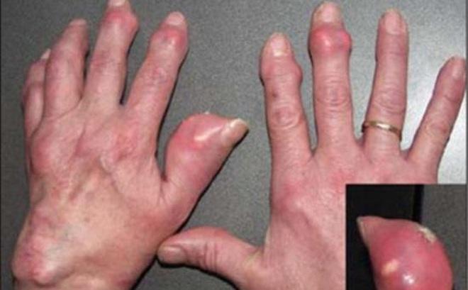 9 nguy cơ dễ làm khởi phát bệnh gút