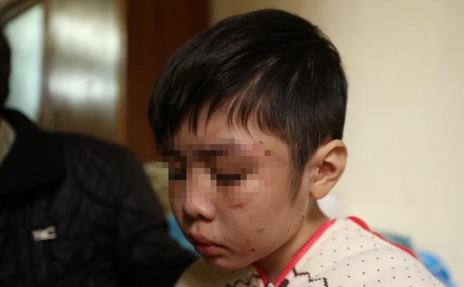 Vụ bé trai 10 tuổi bị bố, mẹ kế hành hạ: Cho con nghỉ học không thông báo, không rút hồ sơ