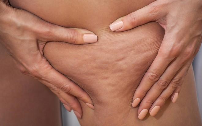 6 động tác thể dục giúp loại bỏ làn da sần vỏ cam, kết quả khác biệt chỉ sau 14 ngày