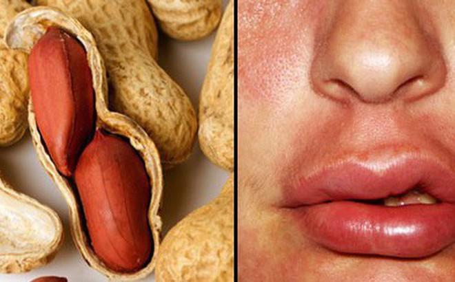 Hạt đậu phộng ngon lành là thế, nhưng nhiều người có thể chết do dị ứng nó