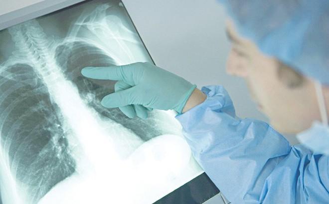 Coi chừng viêm phổi lúc trời chuyển lạnh!