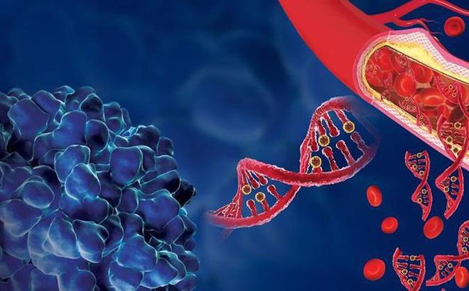 Xét nghiệm máu mới phát hiện sớm ung thư gan, tăng tỷ lệ sống sót cho bệnh nhân
