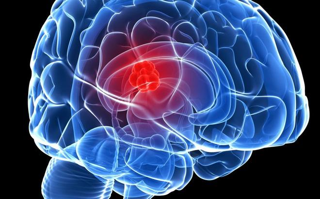 Bác sĩ Mỹ cảnh báo dấu hiệu bạn có thể đang có khối u trong não