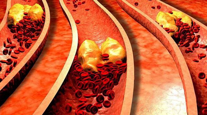Mạch máu tắc thì tuổi thọ ngắn: Giải pháp hiệu quả để thông tắc huyết quản bạn nên áp dụng - Ảnh 2.
