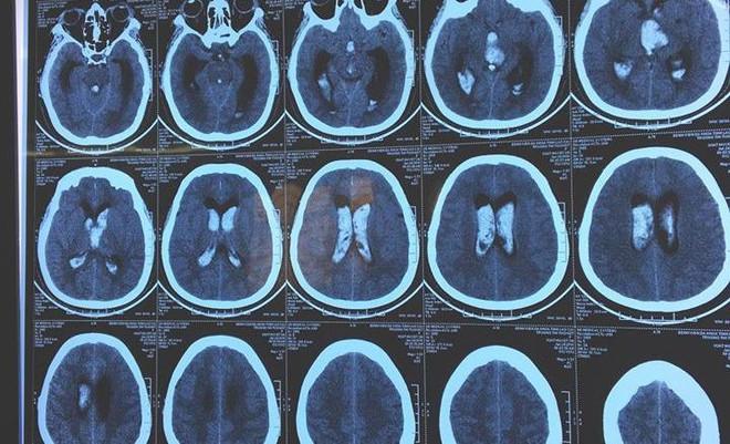 Nữ bệnh nhân đột quỵ, chảy máu não được cứu sống bất ngờ - Ảnh 1.