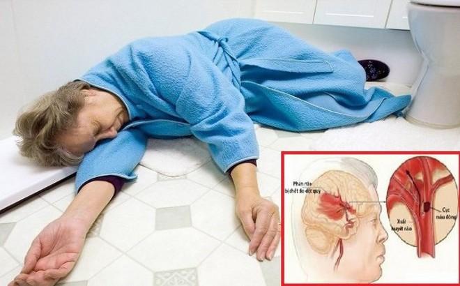 Nữ bệnh nhân đột quỵ, chảy máu não được cứu sống bất ngờ