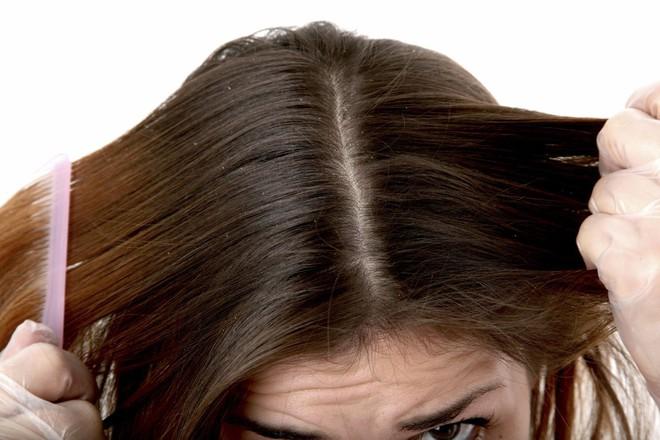 Đừng chủ quan nếu thấy tóc rụng nhiều bởi đó có thể là dấu hiệu của một vài bệnh lý nguy hiểm - Ảnh 3.
