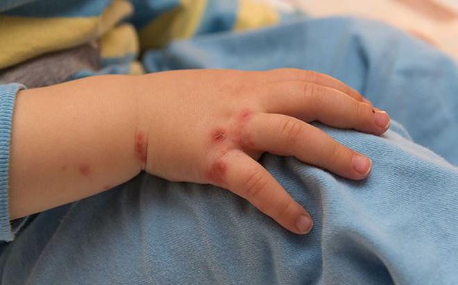 Dấu hiệu đầu tiên của tay chân miệng, cha mẹ cần biết để cứu con