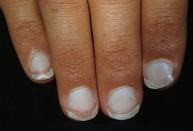 Móng tay tiết lộ những dấu hiệu về sức khỏe của bạn - Ảnh 2.