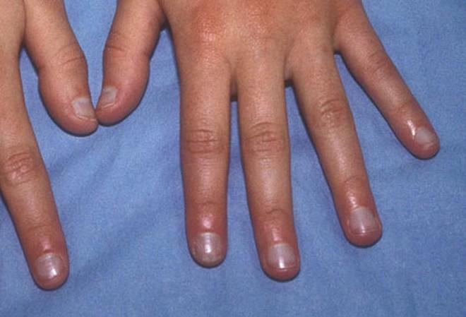 Móng tay tiết lộ những dấu hiệu về sức khỏe của bạn - Ảnh 4.