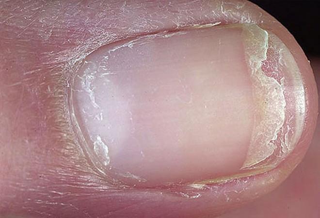 Móng tay tiết lộ những dấu hiệu về sức khỏe của bạn - Ảnh 6.