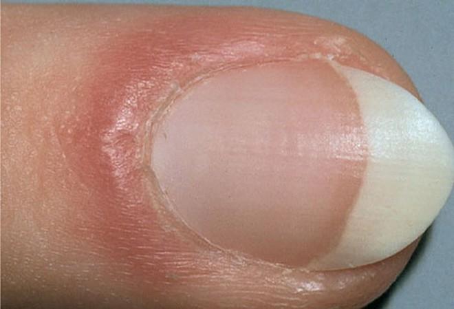 Móng tay tiết lộ những dấu hiệu về sức khỏe của bạn - Ảnh 7.