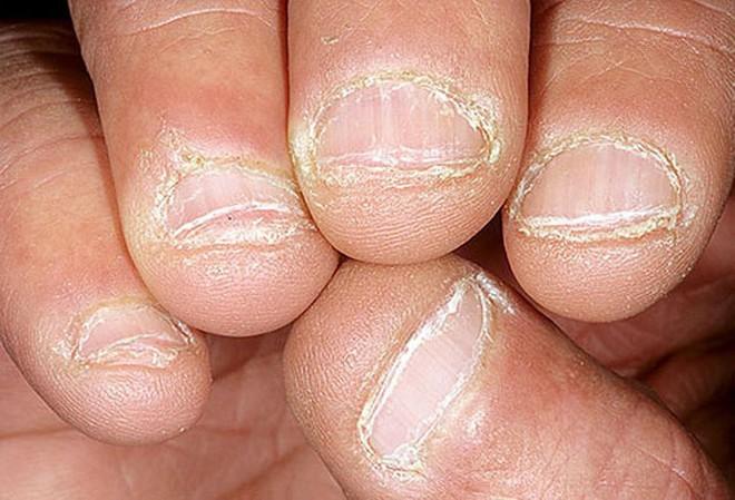 Móng tay tiết lộ những dấu hiệu về sức khỏe của bạn - Ảnh 9.