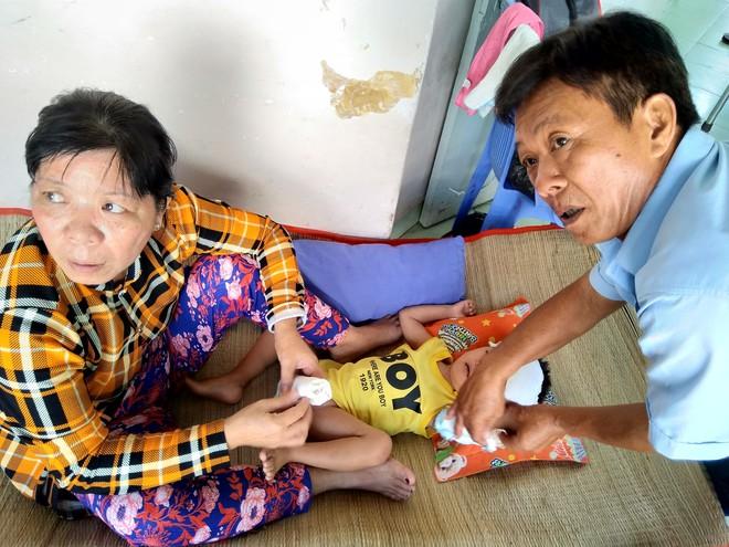 Một ngày ở BV Nhi tại Sài Gòn: Bệnh nhân nằm phơi nắng, phơi sương dọc hành lang bệnh viện  - Ảnh 14.