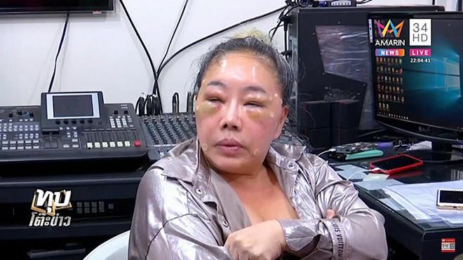 Nữ đại gia Thái Lan đổi chồng như thay áo năm nào gây sốc với gương mặt sưng vù vì bị chồng mới đánh đập? - Ảnh 2.