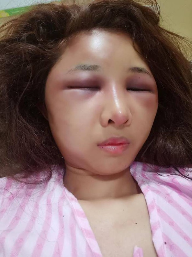Sốc với gương mặt biến dạng trầm trọng của mẹ trẻ xinh đẹp bị chồng đánh vì trót để người yêu cũ đưa về nhà - Ảnh 3.