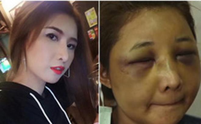 Sốc với gương mặt biến dạng trầm trọng của mẹ trẻ xinh đẹp bị chồng đánh vì trót để người yêu cũ đưa về nhà