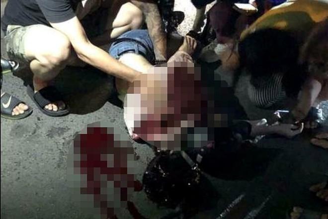 Những tiết lộ hãi hùng về kẻ đâm cô gái trẻ trọng thương ở Bùi Thị Xuân - Ảnh 2.