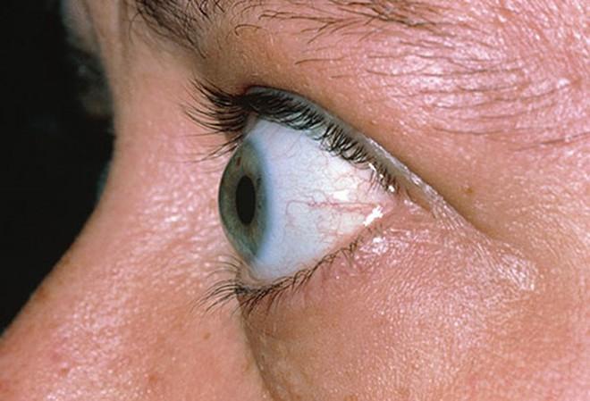 Đôi mắt nói gì về sức khỏe của bạn? - Ảnh 2.