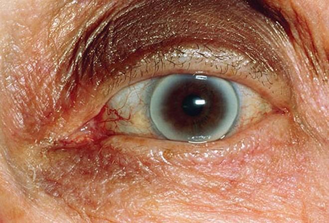 Đôi mắt nói gì về sức khỏe của bạn? - Ảnh 4.