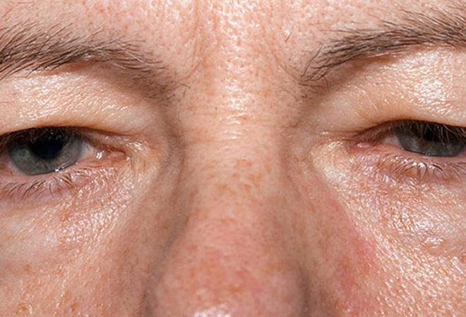 Đôi mắt nói gì về sức khỏe của bạn? - Ảnh 5.