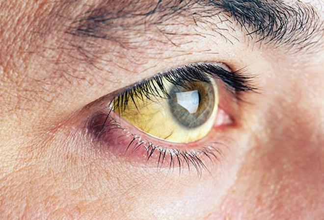 Đôi mắt nói gì về sức khỏe của bạn? - Ảnh 6.