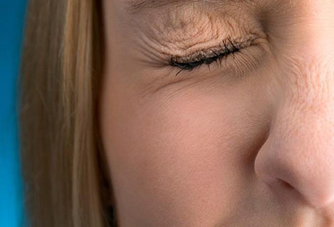 Đôi mắt nói gì về sức khỏe của bạn? - Ảnh 7.