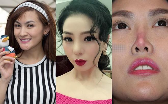 Lệ Quyên và nhiều sao Việt gặp biến chứng vì phẫu thuật thẩm mỹ