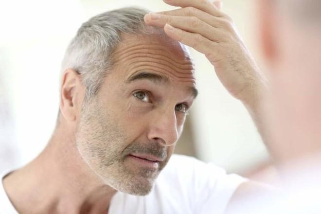 9 biểu hiện giúp bạn phát hiện bệnh qua khuôn mặt - Ảnh 8.