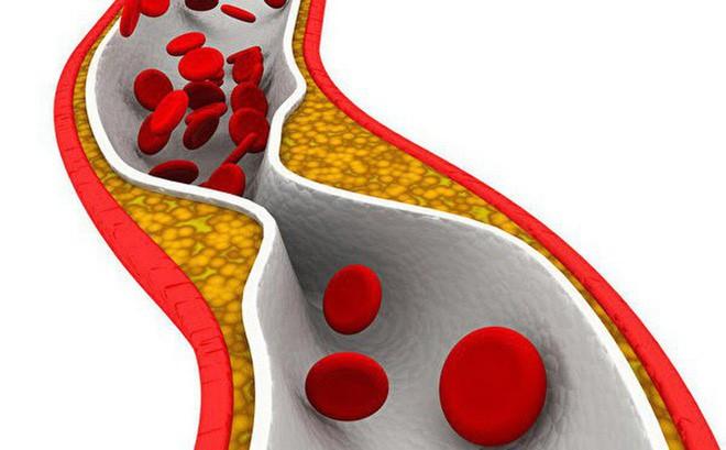 BS cảnh báo: 4 dấu hiệu cho thấy mạch máu đang dần bị tắc, xử lý ngay để tránh nguy hiểm - Ảnh 2.