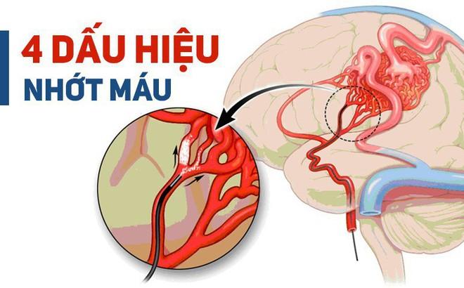 BS cảnh báo: 4 dấu hiệu cho thấy mạch máu đang dần bị tắc, xử lý ngay để tránh nguy hiểm