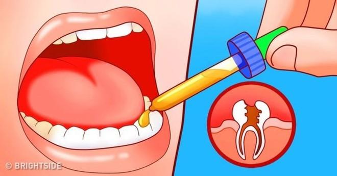 11 cách giúp bạn dịu cơn đau do mọc răng khôn - Ảnh 7.