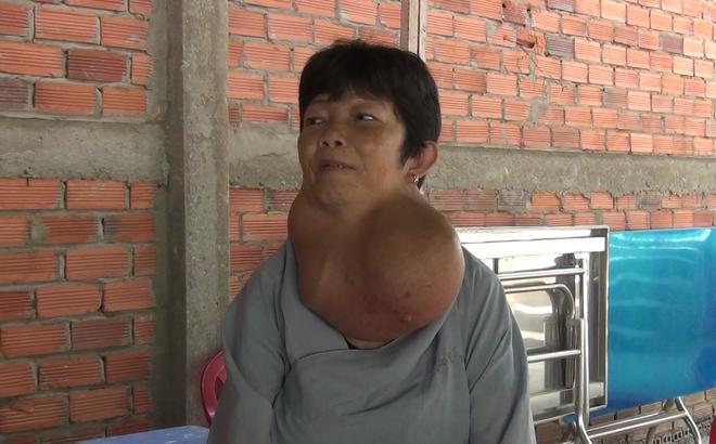 """Người phụ nữ ở Tiền Giang mang bướu cổ """"khủng"""" 5 kg gần 30 năm"""