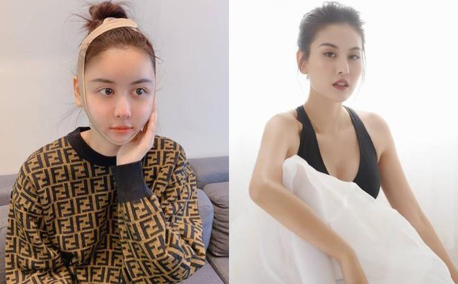 Gương mặt sưng vù, khác lạ của Hà Lade sau phẫu thuật thẩm mỹ